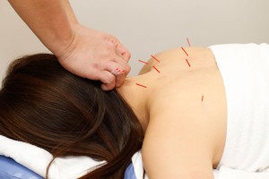 img-acupuncture